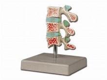 napredna osteoporoza