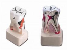 patologija zuba