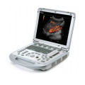 MINDRAY-M7-laptop-ultrasound-machine-for-sale-2