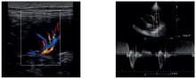 ultrazvuk slike