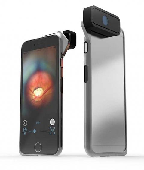 d-eye-oftalmoskop-za-mobitel