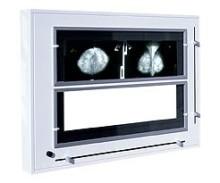 medium_ngp-31-mz-negatoskopy-zaluzjowe-do-mammografii-ultraviol