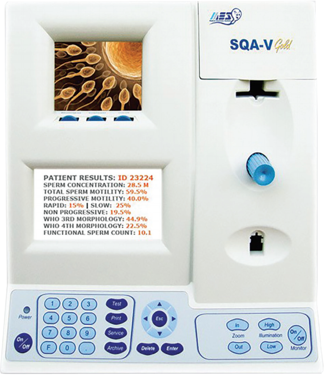 analizator sperme1